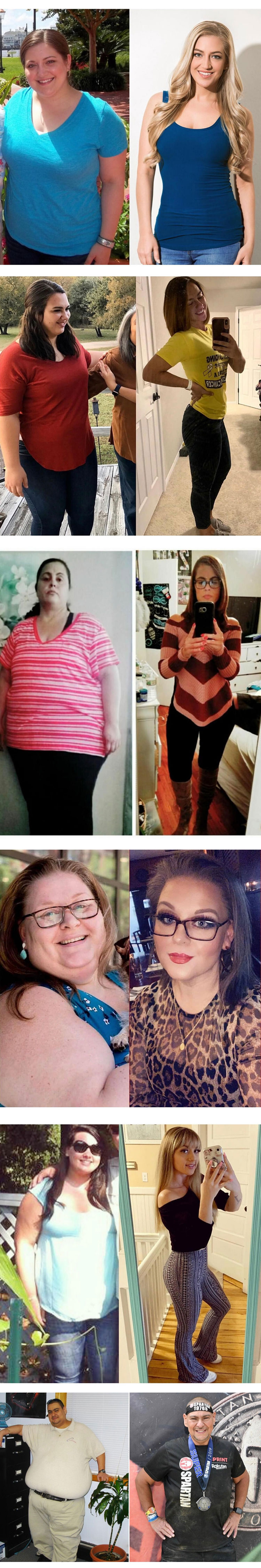 Nusbaum Weight Loss Before And After